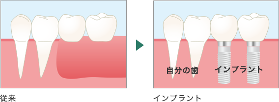 奥歯のインプラント治療の場合